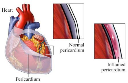 ilustración de una pericarditis