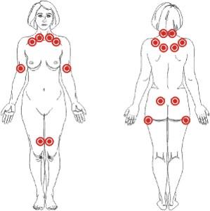puntos-de-la-fibromialgia