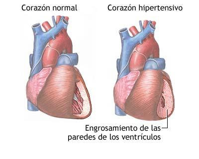 Increased Heart Beats After Drinking Alcohol